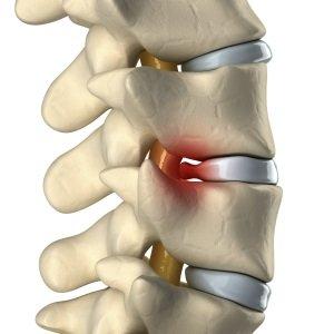 dor-na-coluna-lombar-cervical-sintomas-cirurgia-causam-injeção-crise-o-que-fazer-narcótico-relaxantes-musculares