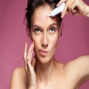 http://www.culturaegastronomia.com.br/remedio/para-espinhas-melhor-inflamada-em-casa-cravos-no-rosto/