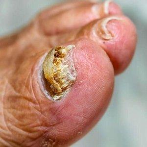 http://www.culturaegastronomia.com.br/remedio/para-fungos-nas-unhas-do-pe-caseiro-natural-melhor-farmacia-oral/